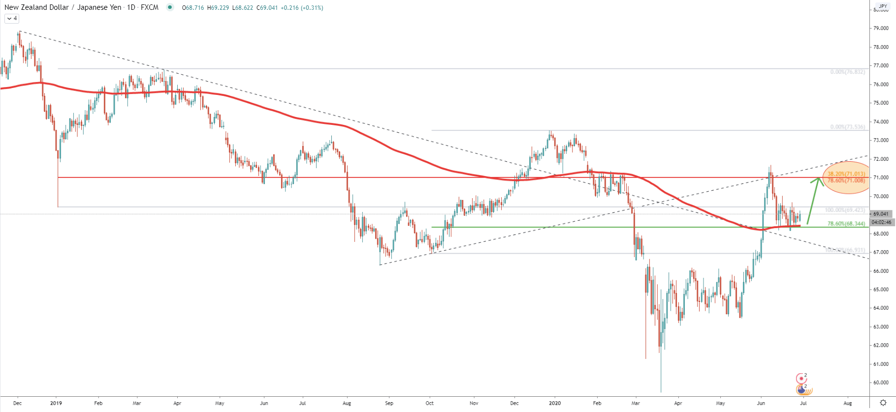 NZD/JPY Daily Technical Analysis 29 June 2020